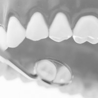 Close-up of a dental mirror showing teeth using model teeth
